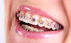 Types Of Braces Elite Orthodontics Cedar Rapids Marion Ia